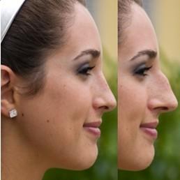 Efekty operacji plastycznej nosa
